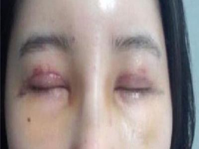 Cắt mí mắt bị sưng có sao không? Xem ngay kẻo hối hận