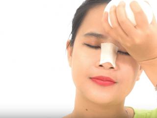 Nguyên nhân khiến mũi bị viêm sưng sau phẫu thuật và cách xử lý